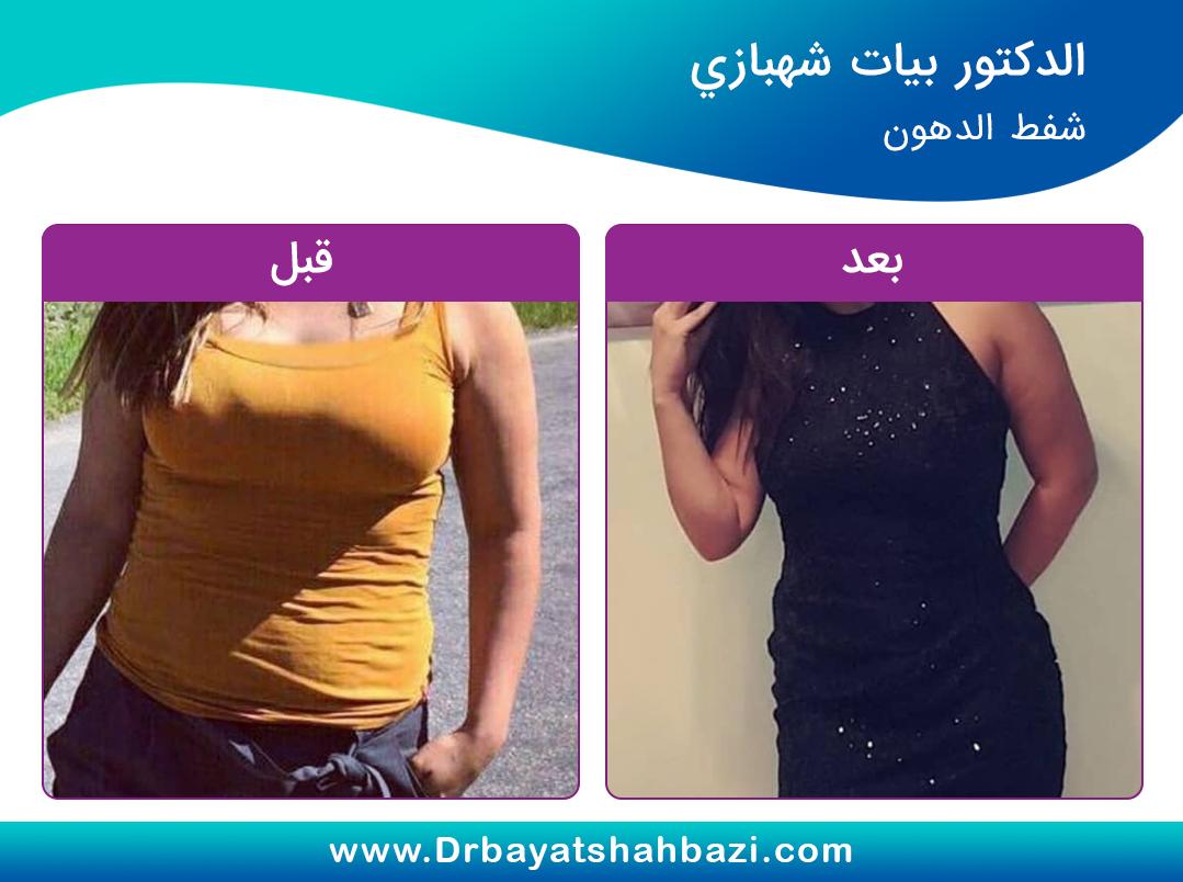 قبل وبعد شفط الدهون د. بيات شهبازي في طهران